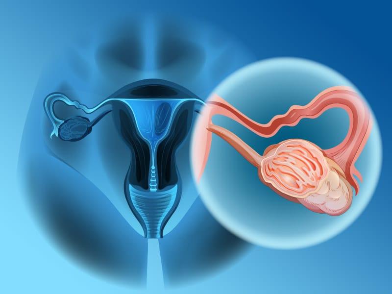 BRCA1 E BRCA2 - Painel - Sequenciamento e MLPA - Câncer de Mama e Ovário