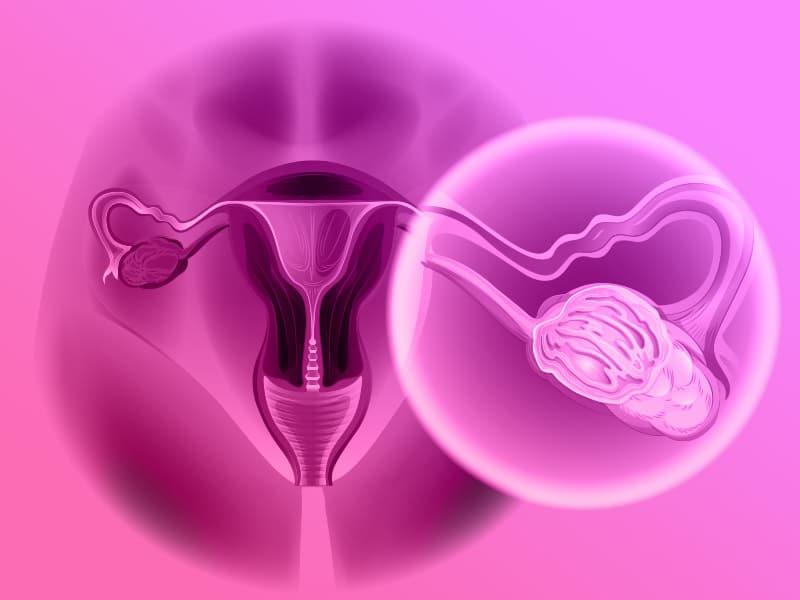 BRCA1 e BRCA2 - Sequenciamento Genético Completo - Câncer de Mama e Ovário
